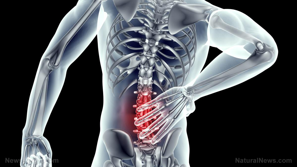 Reduce back pain with these tips … plus effective exercises for improving posture