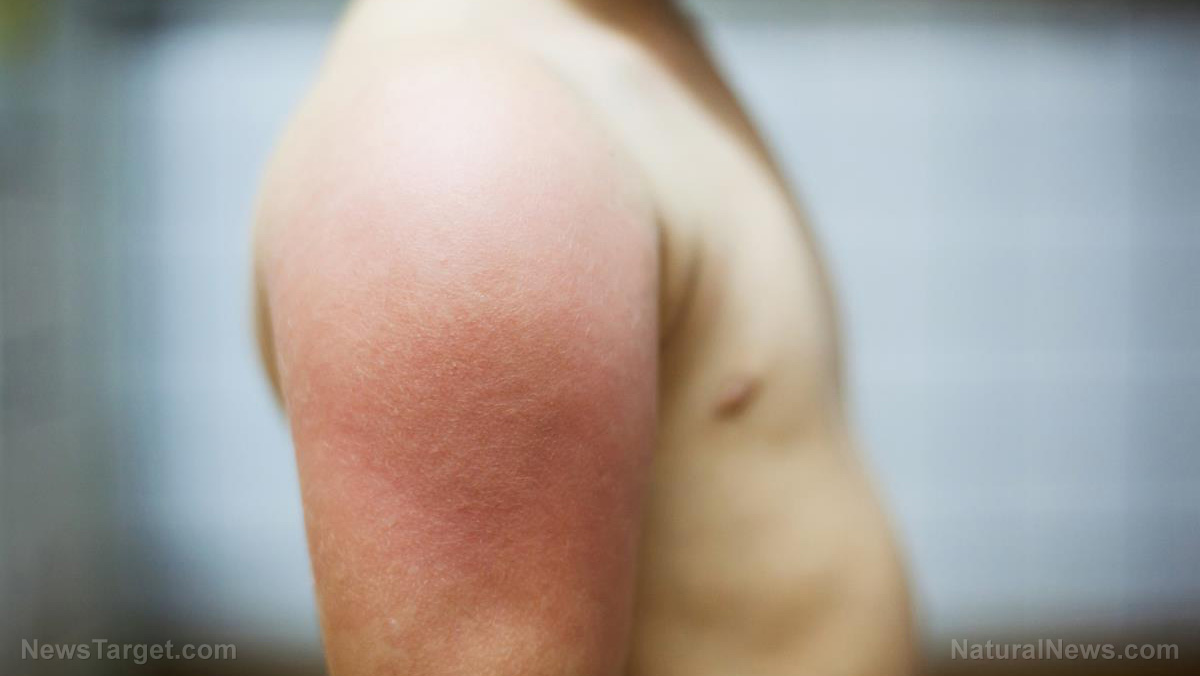 "Prurigo pigmentosa: What causes ""keto rash?"""